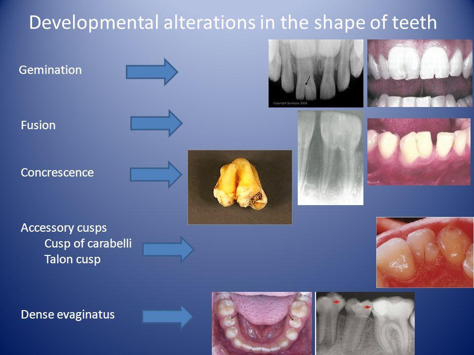 Developmental alterations in the shape of teeth Gemination Fusion Concrescence Accessory cusps Cusp of carabelli Talon cusp Dense evaginatus