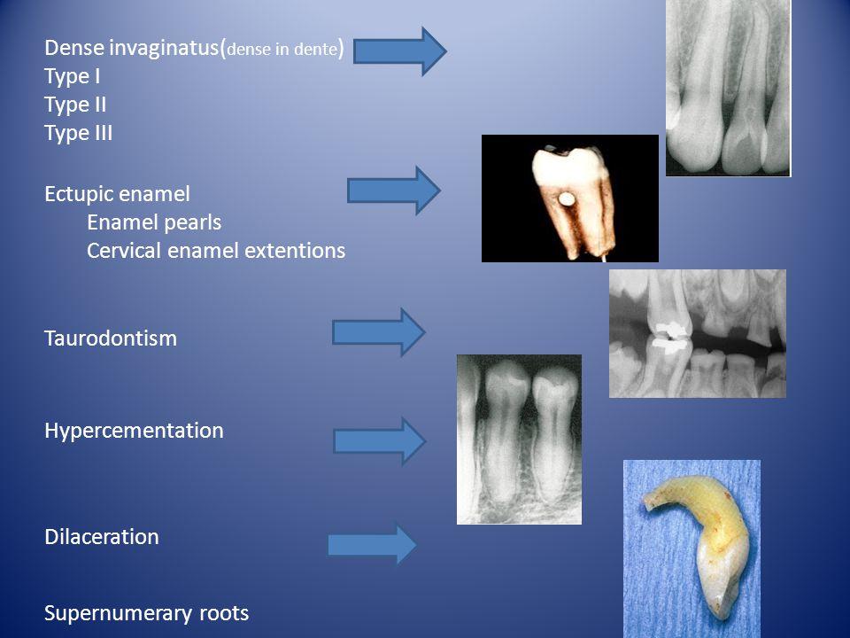 Dense invaginatus( dense in dente ) Type I Type II Type III Ectupic enamel Enamel pearls Cervical enamel extentions Taurodontism Hypercementation Dila