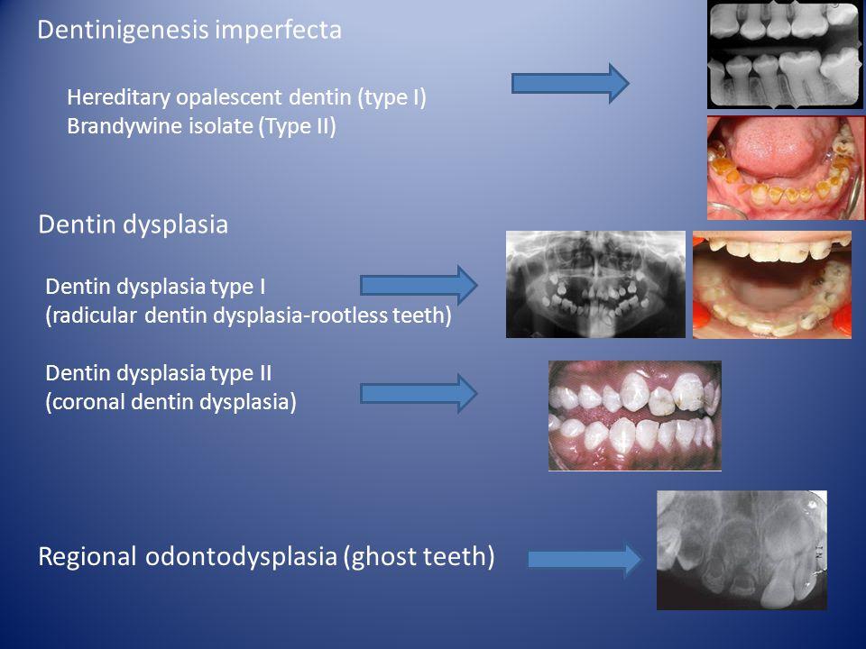 Hereditary opalescent dentin (type I) Brandywine isolate (Type II) Dentin dysplasia type I (radicular dentin dysplasia-rootless teeth) Dentin dysplasi