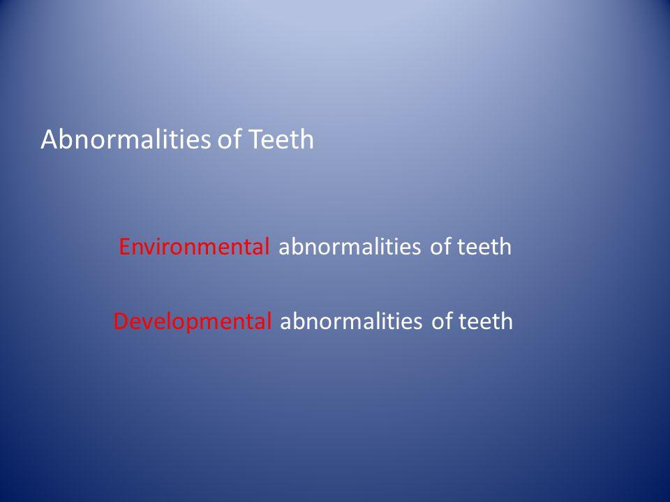 Abnormalities of Teeth Environmental abnormalities of teeth Developmental abnormalities of teeth