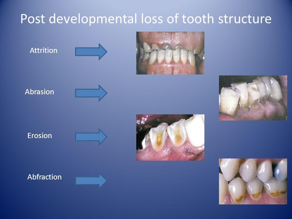 Post developmental loss of tooth structure Attrition Abrasion Erosion Abfraction