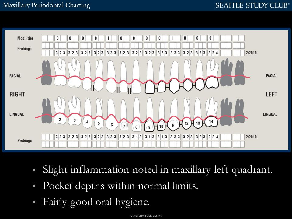 Maxillary Periodontal Charting  Slight inflammation noted in maxillary left quadrant.  Pocket depths within normal limits.  Fairly good oral hygien