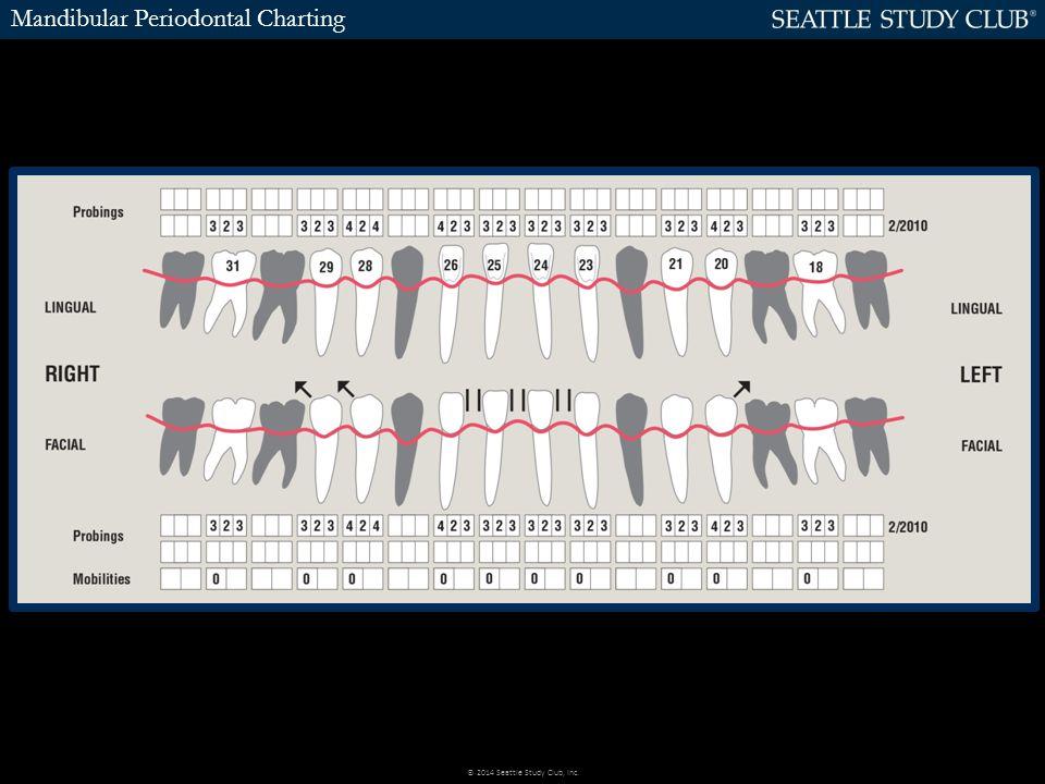 Mandibular Periodontal Charting © 2014 Seattle Study Club, Inc.
