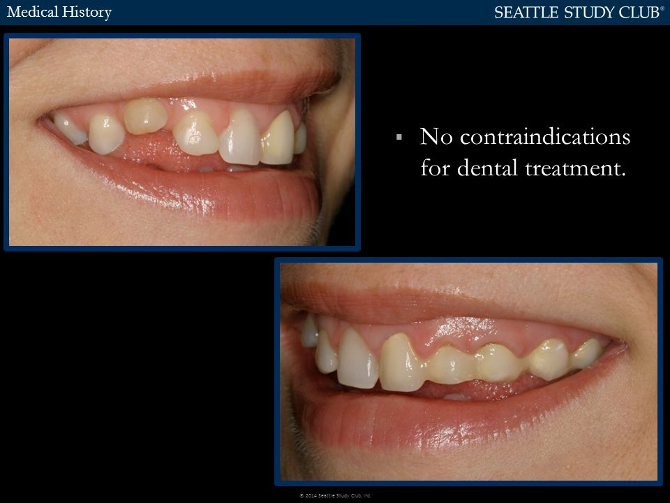  No contraindications for dental treatment. Medical History © 2014 Seattle Study Club, Inc.