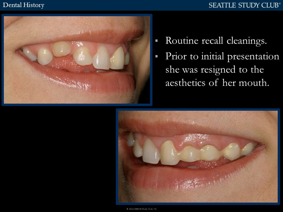  Routine recall cleanings.  Prior to initial presentation she was resigned to the aesthetics of her mouth. Dental History © 2014 Seattle Study Club,