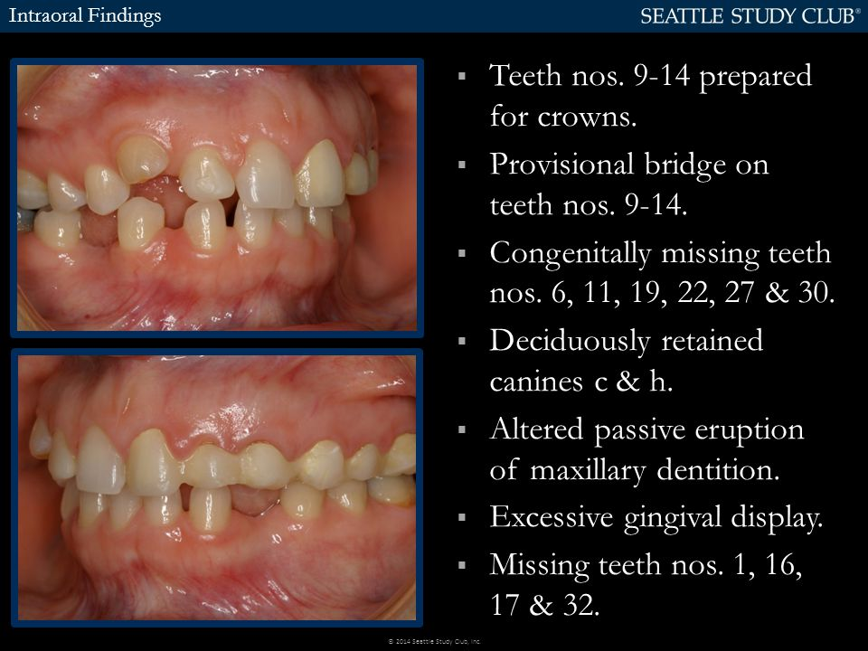  Teeth nos. 9-14 prepared for crowns.  Provisional bridge on teeth nos. 9-14.  Congenitally missing teeth nos. 6, 11, 19, 22, 27 & 30.  Deciduousl