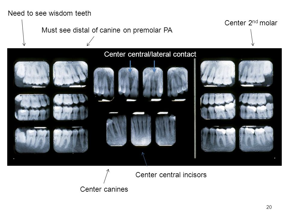 20 Must see distal of canine on premolar PA Center 2 nd molar Center canines Center central incisors Need to see wisdom teeth Center central/lateral contact