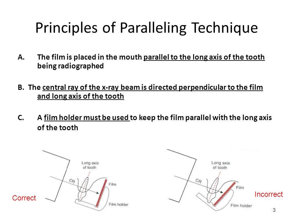 3 Principles of Paralleling Technique A.The film is placed in the mouth parallel to the long axis of the tooth being radiographed B.
