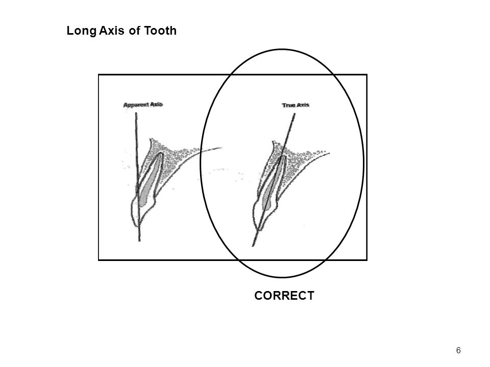 6 CORRECT Long Axis of Tooth