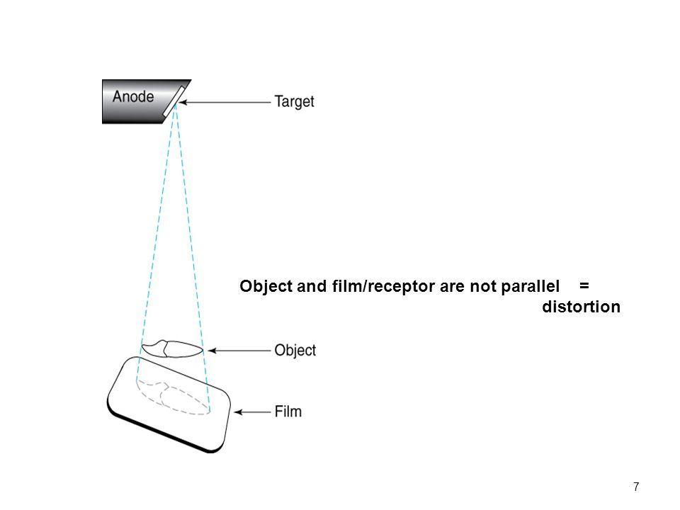 7 Object and film/receptor are not parallel = distortion