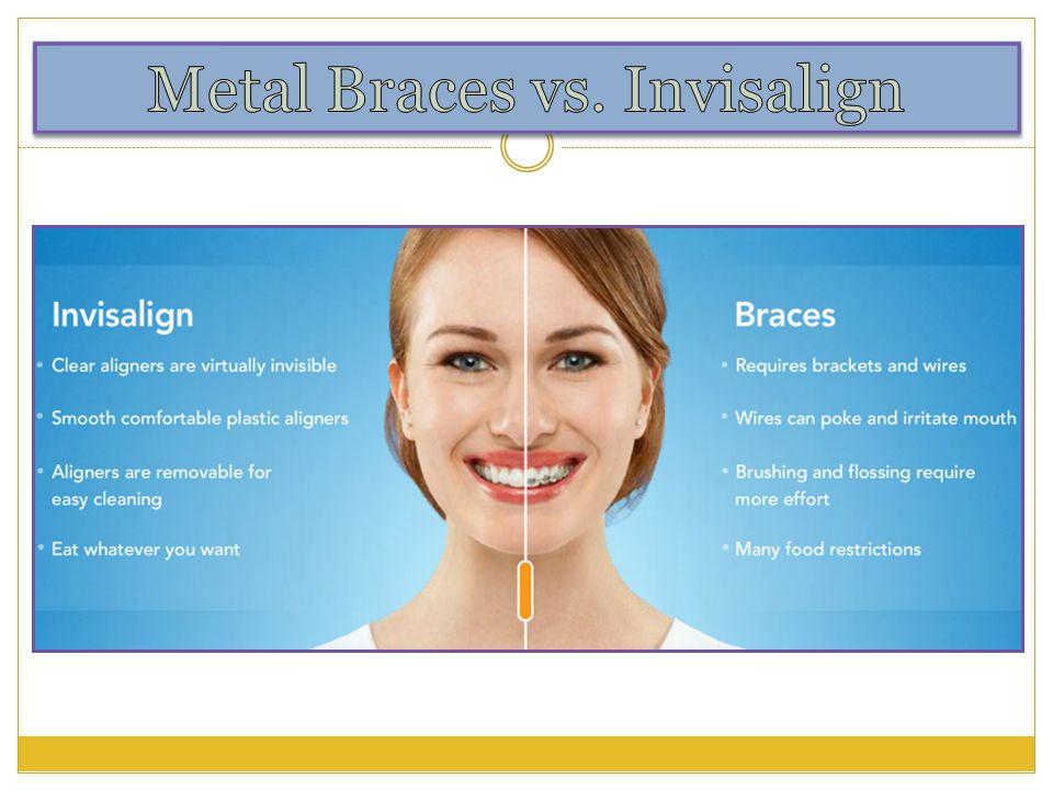 Metal Braces VS Invisalign