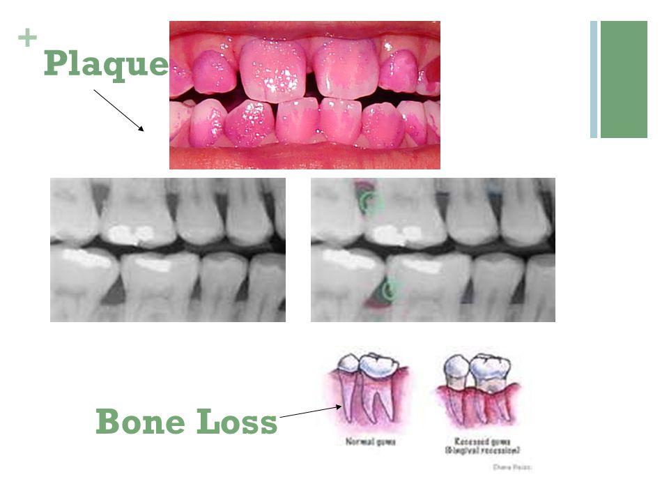 + Plaque Bone Loss