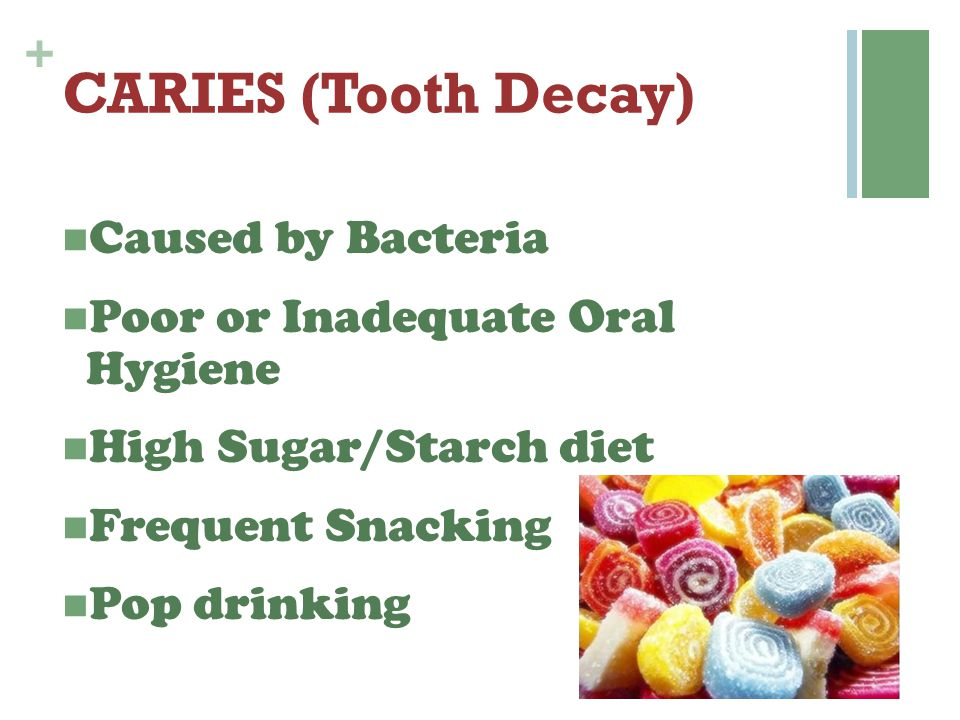 + CARIES (Tooth Decay) Caused by Bacteria Poor or Inadequate Oral Hygiene High Sugar/Starch diet Frequent Snacking Pop drinking