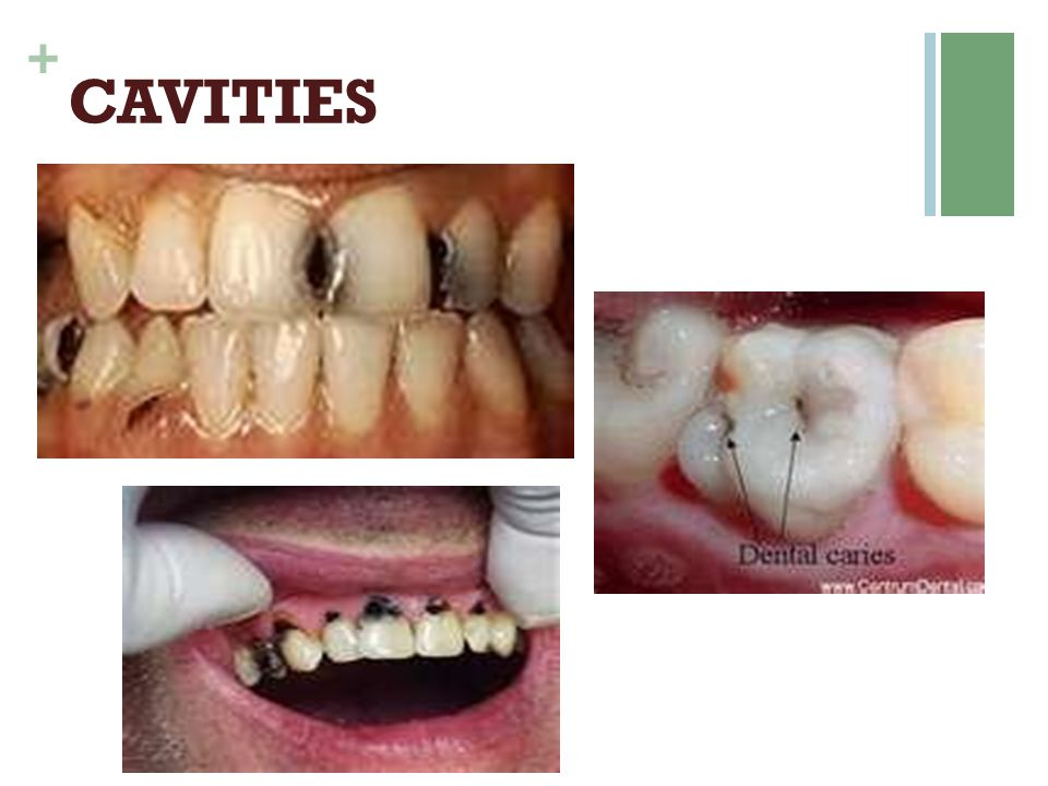 + TARTAR-CONTROL TOOTHPASTE  Active Ingr: SodiumPyrophosphate  Successfully reduces tartar buildup between regular 6 month checkups  May give a false sense of security  May mask signs of gum disease  Longterm use may cause sensitivity