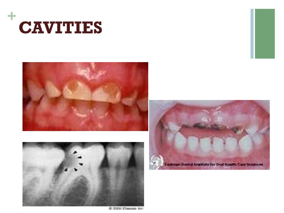 + SENSITIVITY TOOTHPASTE  Active Ingr: Potassium Nitrate or Strontium Chloride (ADA accepted)  Improvement noticed after 4-6 wks  Use only for 2-3 months