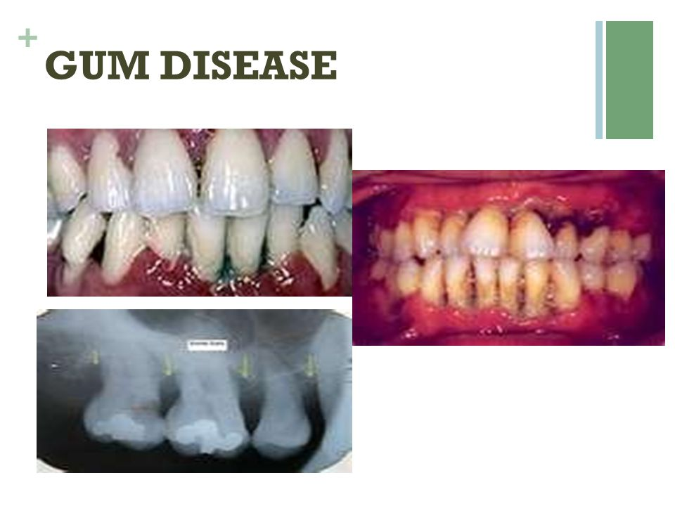 + PRESCIPTION TOOTHPASTE  Prevident 5000 plus  Fluoridex 5000 ppm  Renew (5000ppm + NovaMin for sensitivity) It is very new.