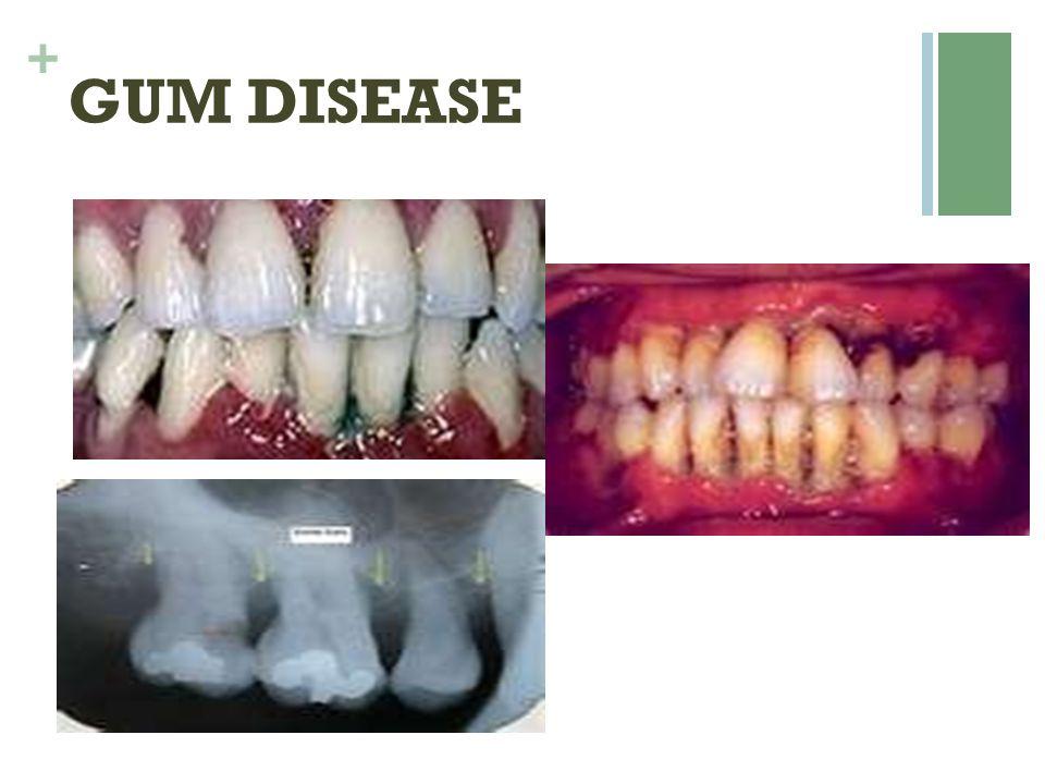 + GUM DISEASE