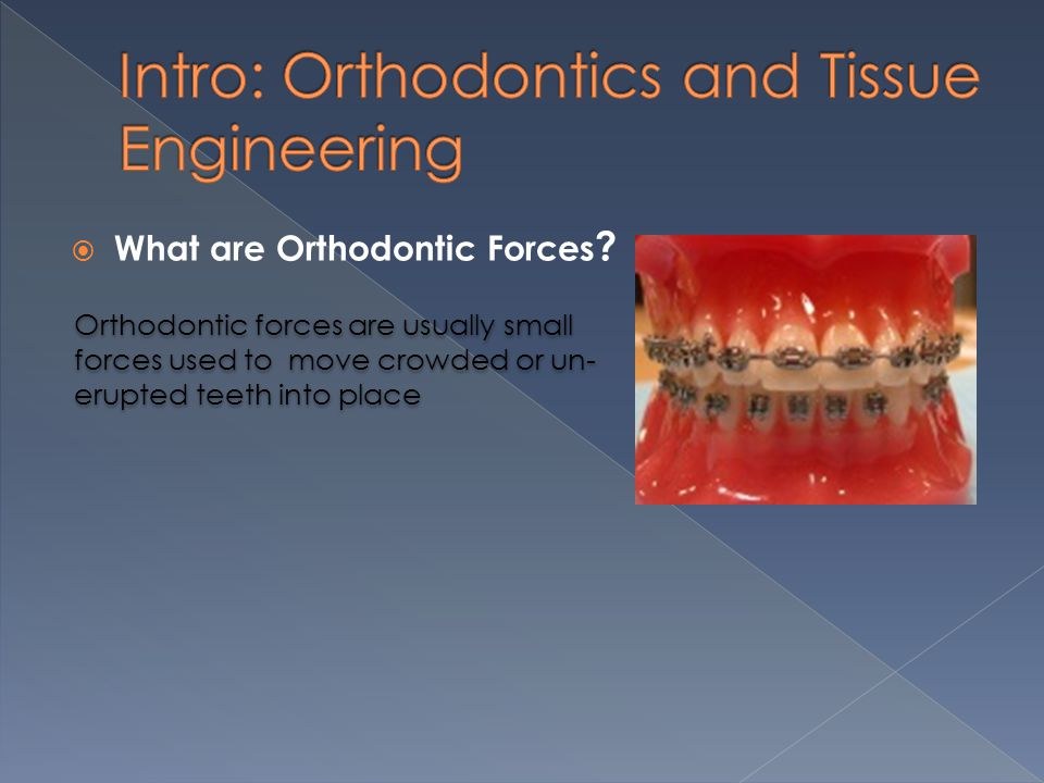  What are Orthodontic Forces .