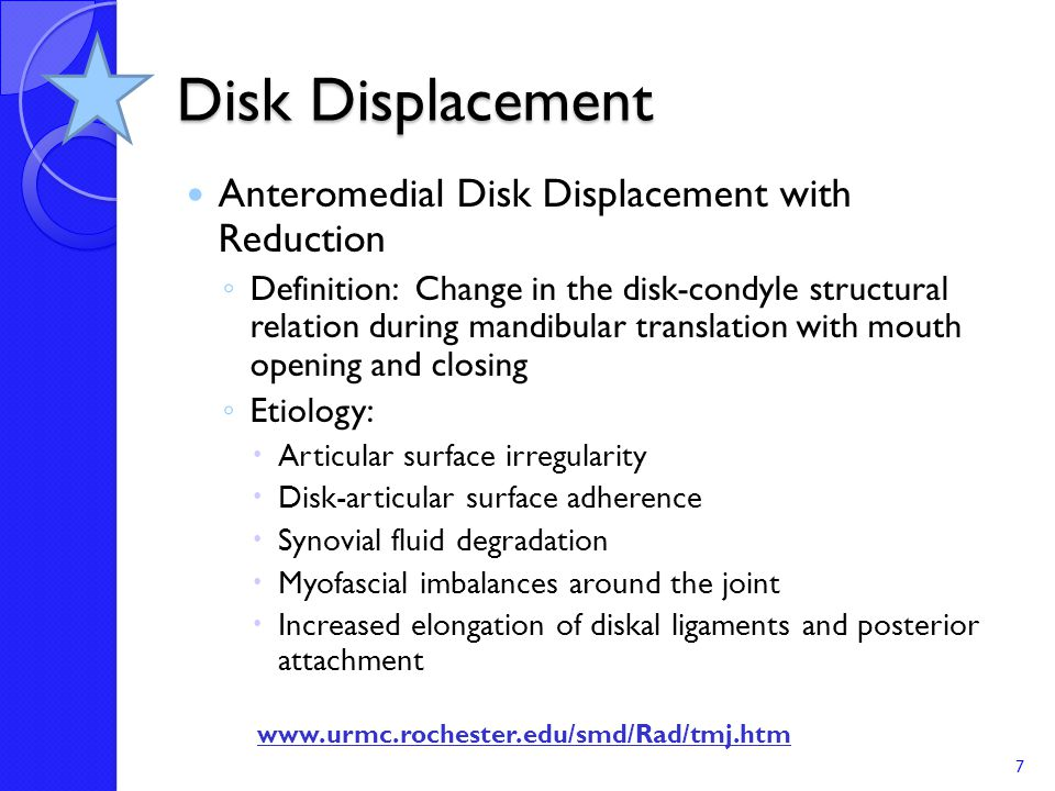 5 Progressive Stages Stage I Disk Displacement ◦ Temporal mandibular ligament becomes elongated ◦ Disk drops medially - subluxes which reduces upon closure ◦ Ligament brings the disk back into place upon closure 8