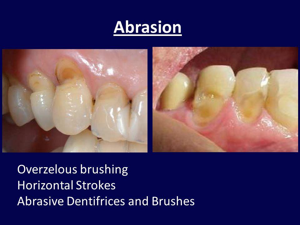 Abrasion Overzelous brushing Horizontal Strokes Abrasive Dentifrices and Brushes