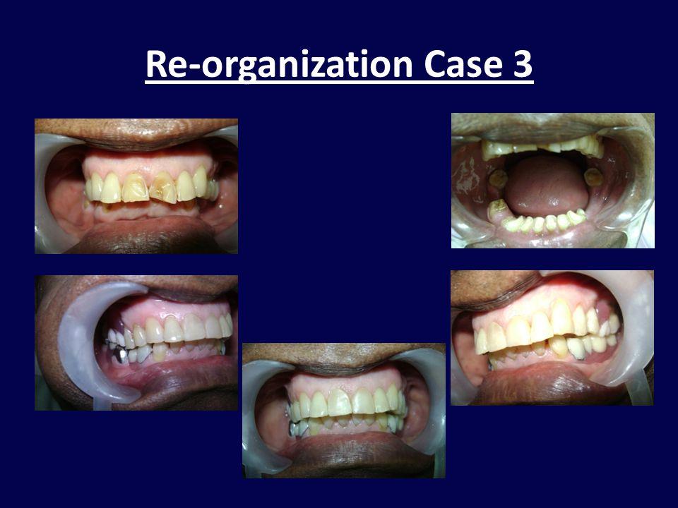 Re-organization Case 3