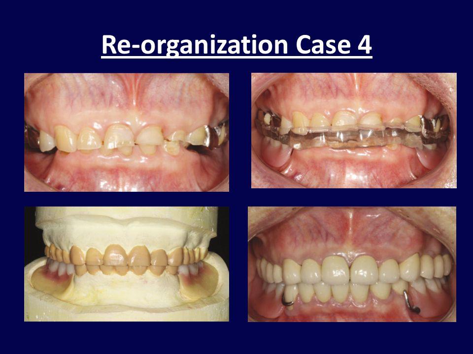 Re-organization Case 4