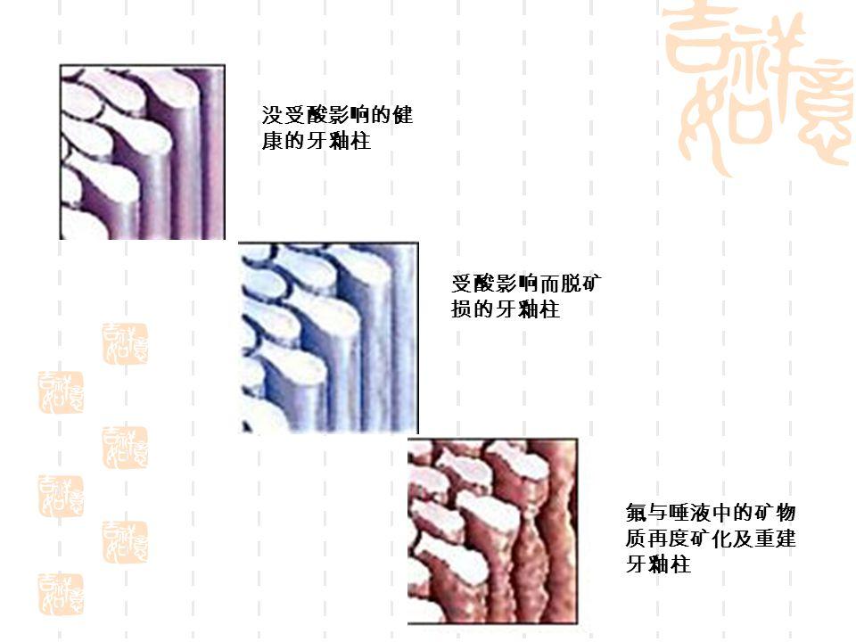 没受酸影响的健 康的牙釉柱 受酸影响而脱矿 损的牙釉柱 氟与唾液中的矿物 质再度矿化及重建 牙釉柱