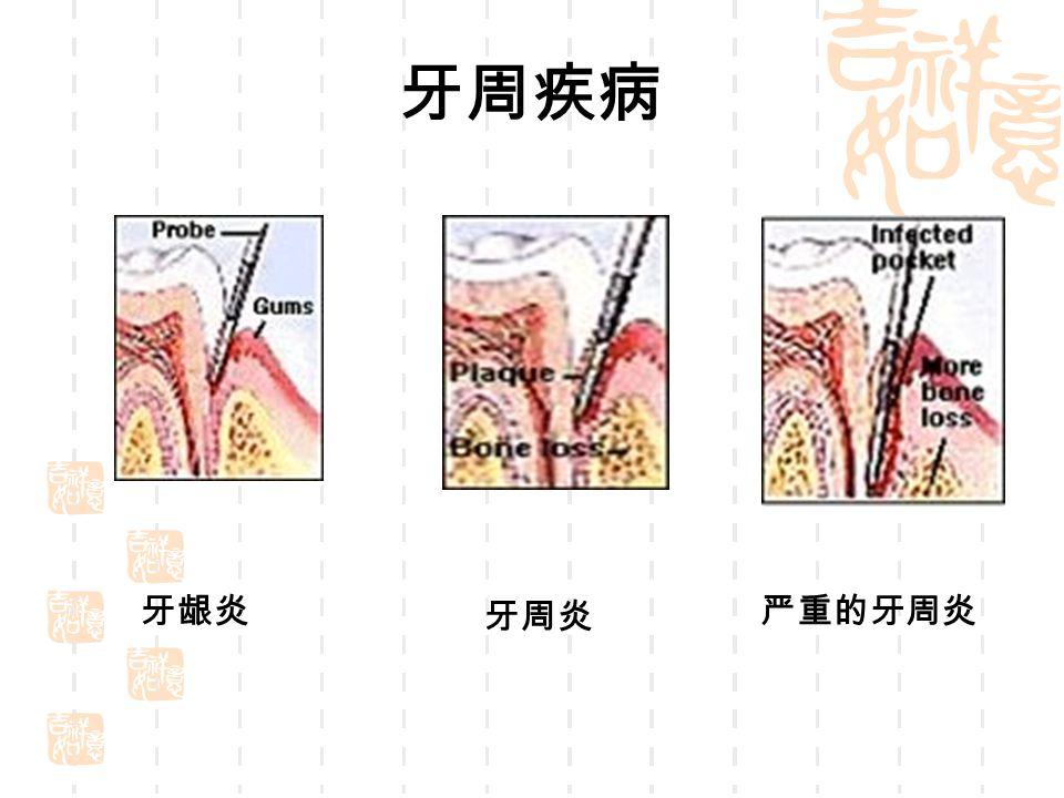 牙周疾病 牙龈炎 牙周炎 严重的牙周炎