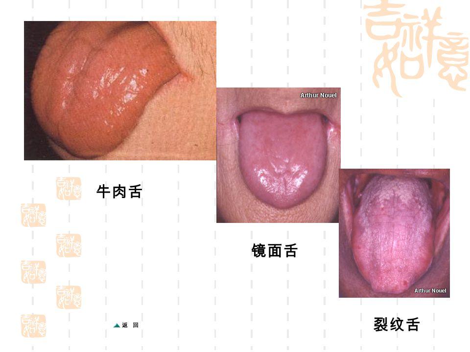 牛肉舌 镜面舌 裂纹舌