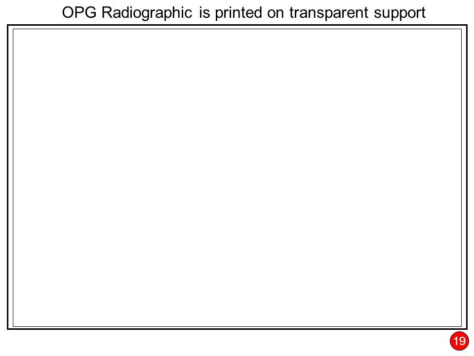 19 OPG Radiographic is printed on transparent support