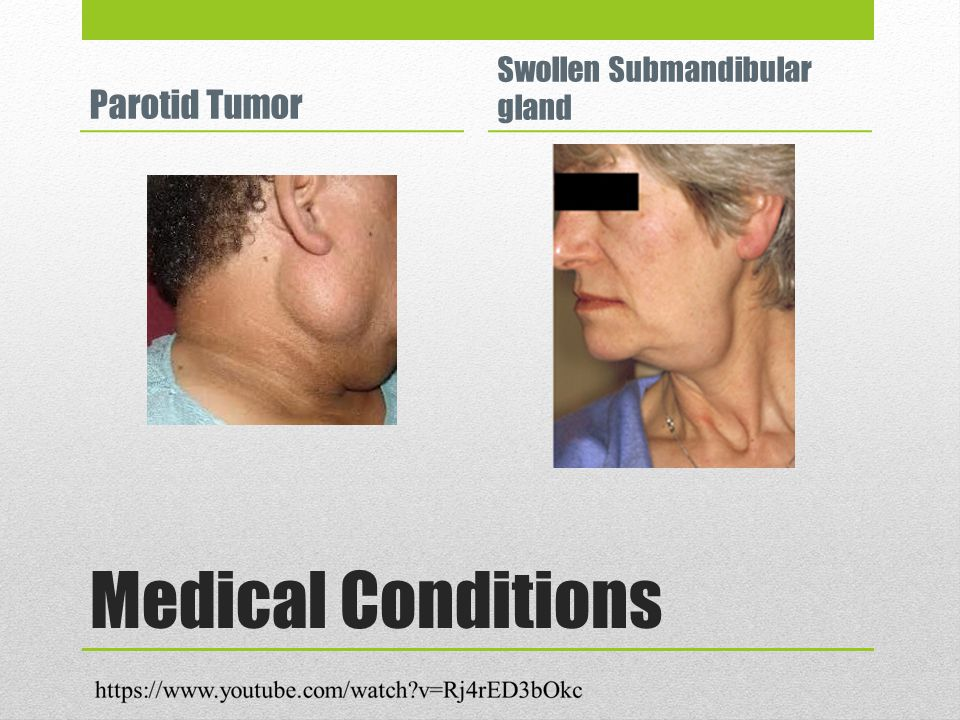 Medical Conditions Parotid Tumor Swollen Submandibular gland