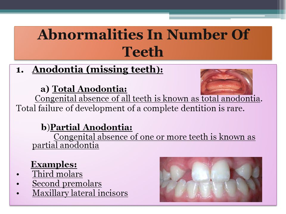 Abnormalities In Number of Teeth 2.HYPERDONTIA (ADDITIONAL TEETH): Additional teeth are relatively common They are usually of conical shape (supernumerary teeth) but, less frequently resemble teeth of normal series (supplemental teeth) These are the results of excessive growth of dental lamina of unknown cause supernumerary teeth may prevent the eruption of the a permanent teeth & also may cause displacement or malposition of teeth EXAMPLES: Mesiodens (between maxillary central incisors) Paramolars (maxillary fourth molars) Distomolar Neonatal teeth 2.HYPERDONTIA (ADDITIONAL TEETH): Additional teeth are relatively common They are usually of conical shape (supernumerary teeth) but, less frequently resemble teeth of normal series (supplemental teeth) These are the results of excessive growth of dental lamina of unknown cause supernumerary teeth may prevent the eruption of the a permanent teeth & also may cause displacement or malposition of teeth EXAMPLES: Mesiodens (between maxillary central incisors) Paramolars (maxillary fourth molars) Distomolar Neonatal teeth