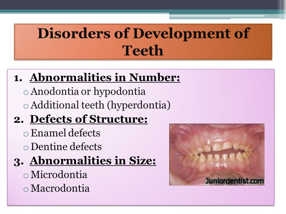 Disorders of Development of Teeth 4.