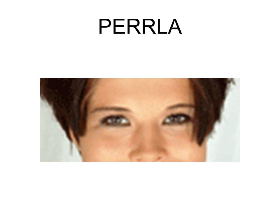 PERRLA