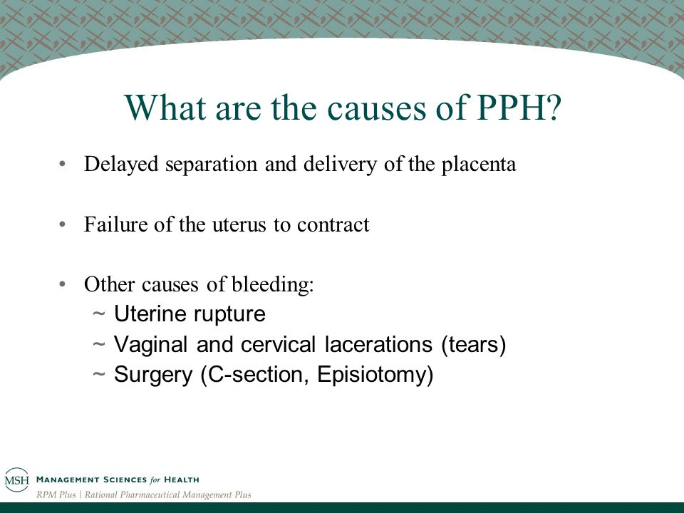 What are the causes of PPH.