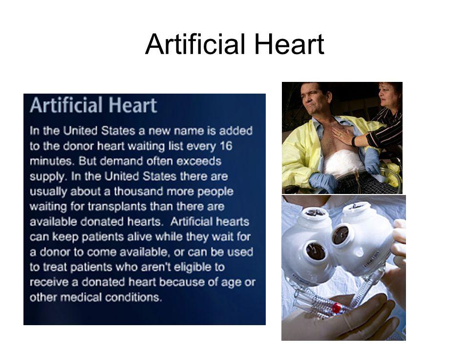 Heart Transplant at 6 days old http://www.jordanzane.com/