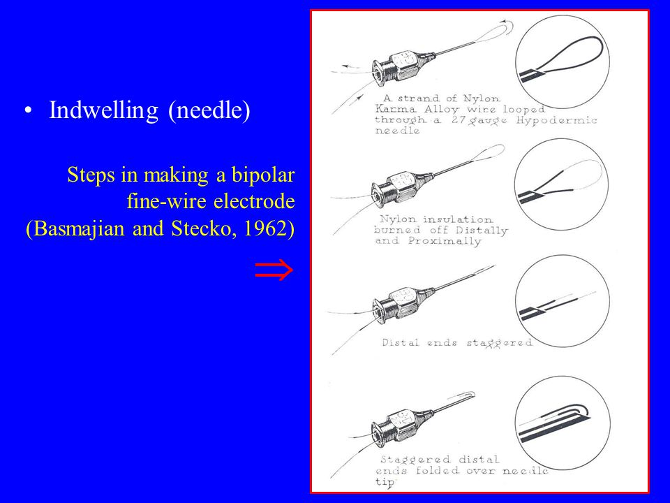 Indwelling (needle) Steps in making a bipolar fine-wire electrode (Basmajian and Stecko, 1962) 