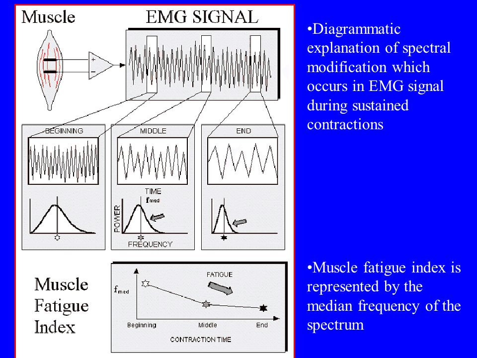 Diagrammatic explanation of spectral modification which occurs in EMG signal during sustained contractions Muscle fatigue index is represented by the