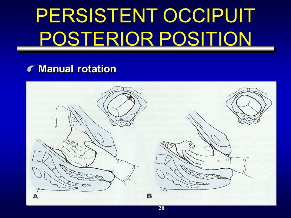 20 PERSISTENT OCCIPUIT POSTERIOR POSITION Manual rotation