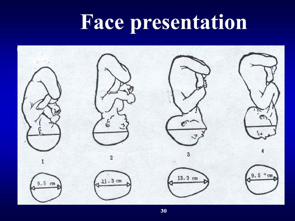 30 Face presentation