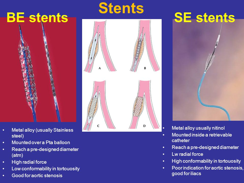 Stents Metal alloy (usually Stainless steel) Mounted over a Pta balloon Reach a pre-designed diameter (atm) High radial force Low conformability in tortouosity Good for aortic stenosis Metal alloy usually nitinol Mounted inside a retrievable catheter Reach a pre-designed diameter Lw radial force High conformability in tortouosity Poor indication for aortic stenosis, good for iliacs BE stentsSE stents