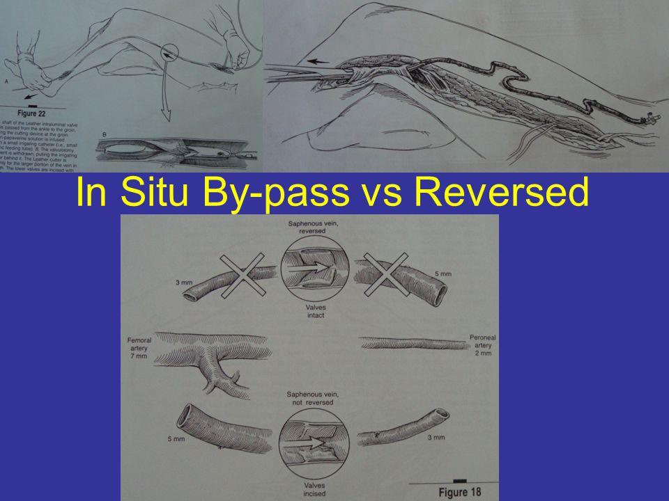 In Situ By-pass vs Reversed