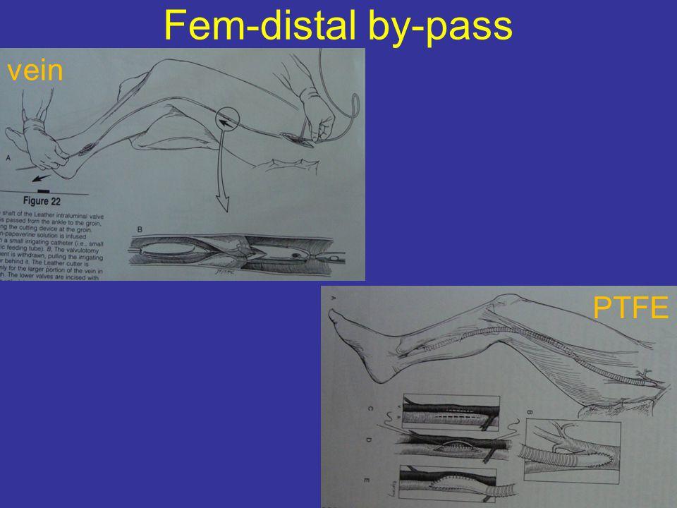 Fem-distal by-pass PTFE vein