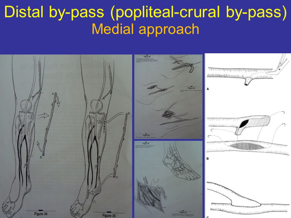 Distal by-pass (popliteal-crural by-pass) Medial approach