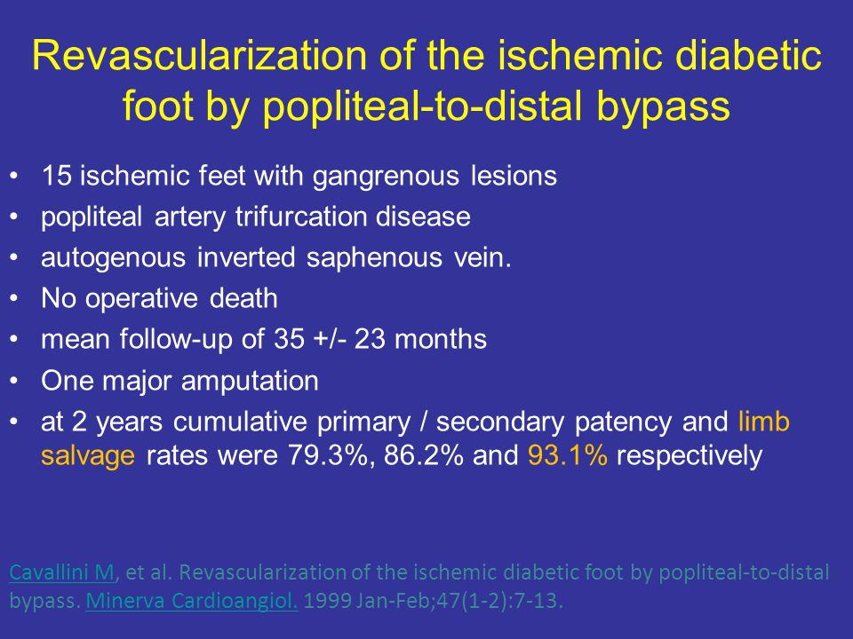 Revascularization of the ischemic diabetic foot by popliteal-to-distal bypass 15 ischemic feet with gangrenous lesions popliteal artery trifurcation disease autogenous inverted saphenous vein.