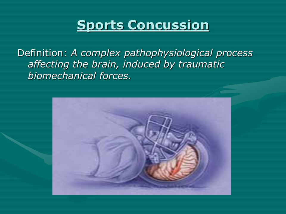 Sports Concussion Definition: A complex pathophysiological process affecting the brain, induced by traumatic biomechanical forces.