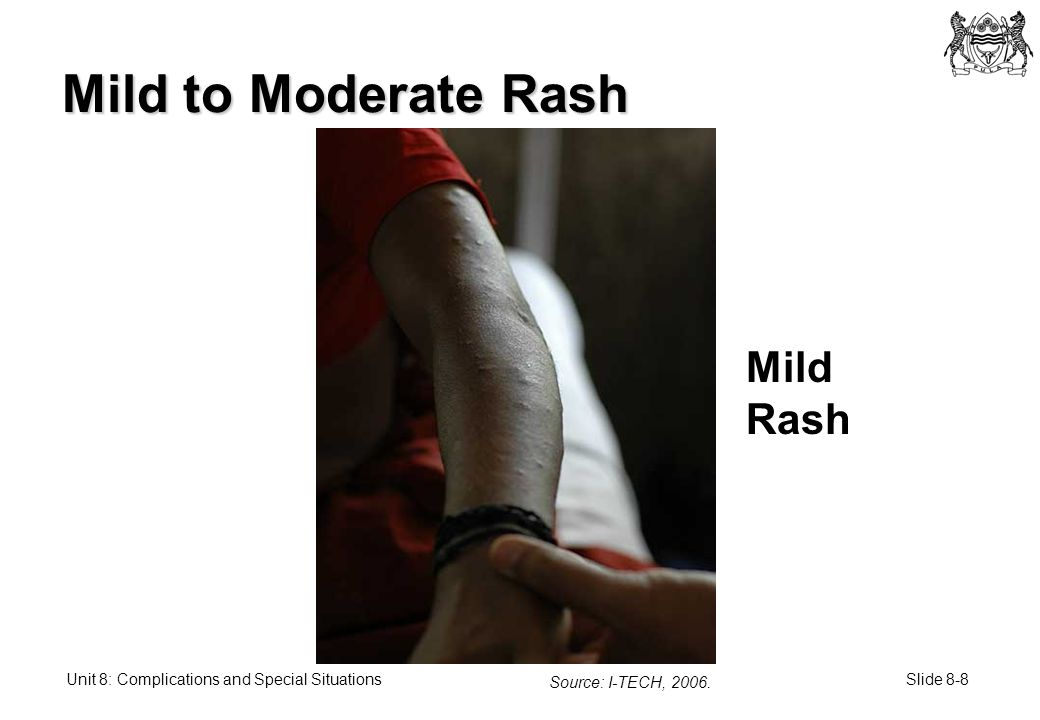 Slide 8-8Unit 8: Complications and Special Situations Mild to Moderate Rash Source: I-TECH, 2006.