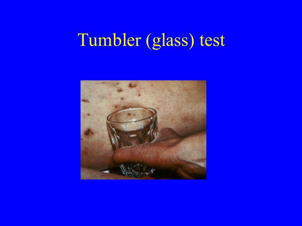 Tumbler (glass) test
