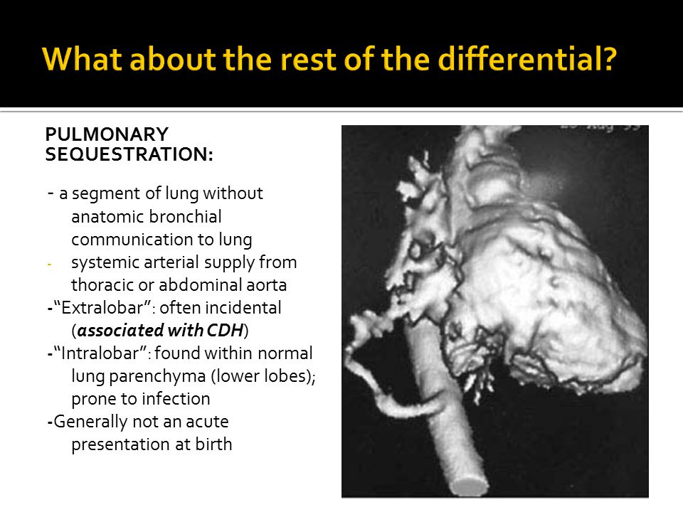 PULMONARY SEQUESTRATION: - a segment of lung without anatomic bronchial communication to lung - systemic arterial supply from thoracic or abdominal ao
