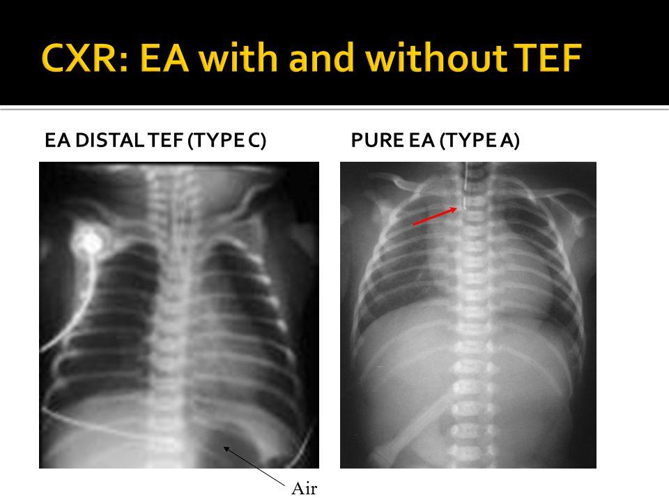 EA DISTAL TEF (TYPE C)PURE EA (TYPE A) Air